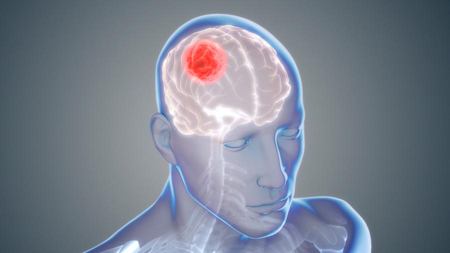 Consiguen aplicar un fármaco 1,400 veces más potente contra el cáncer cerebral que hasta ahora no podía usarse