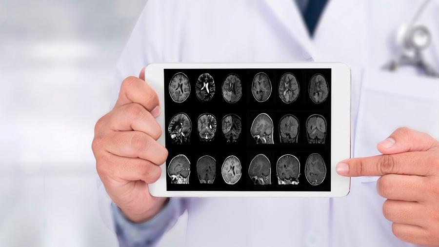 Demuestran cómo ciertas proteínas pueden regular el desarrollo del Alzheimer o Parkinson