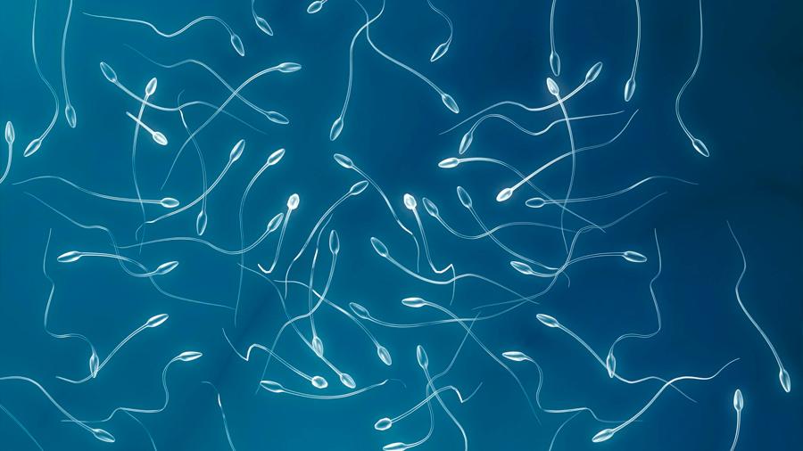 Paciente termina generando espermatozoides ajenos luego de recibir un trasplante de médula ósea