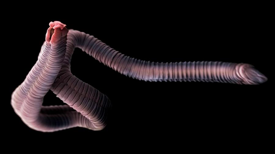 Ubica los 3 parásitos más peligrosos y las enfermedades que te pueden causar