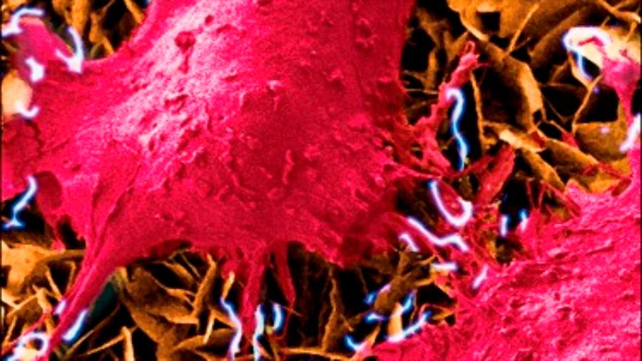Dispositivo de estimulación de células para uso en prótesis médicas
