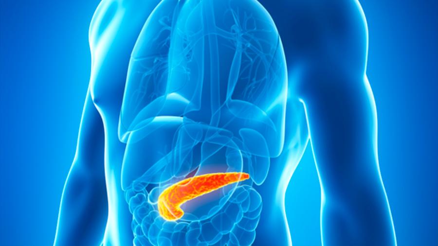 Exceso de grasa en el páncreas es una de las causas de aparición de a diabetes tipo 2