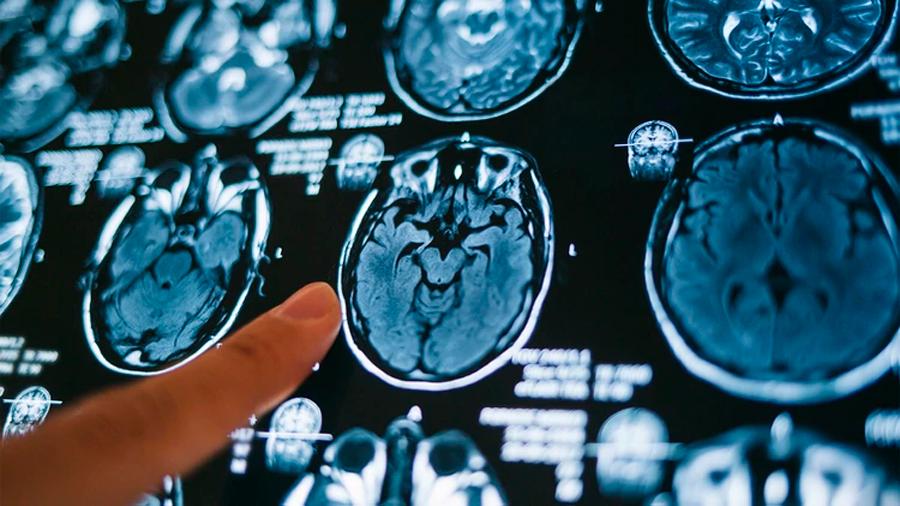 """Los cerebros de los bebés son las """"computadoras"""" más inteligentes que existen, según uno de los mayores expertos en neurociencia"""