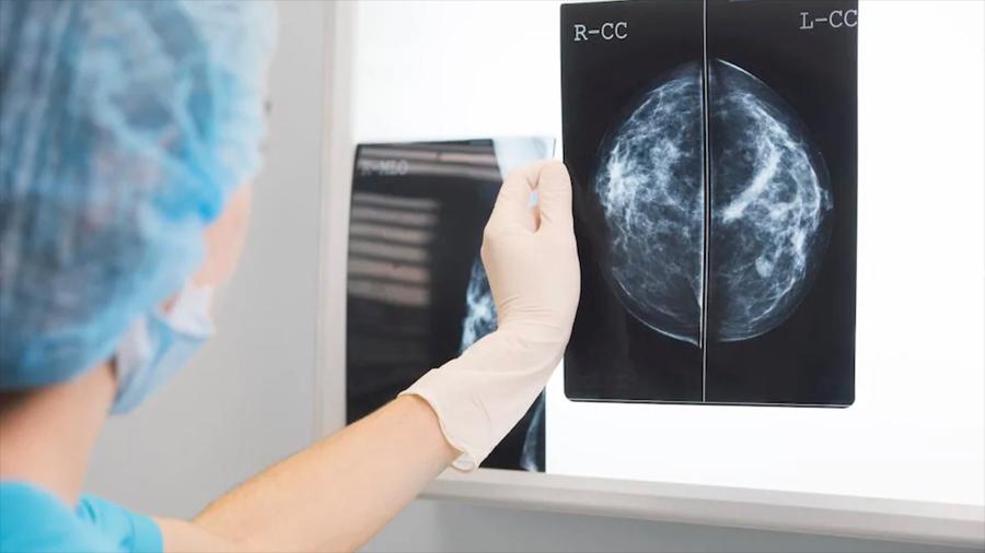"""La IA """"supera a médicos"""" en el diagnóstico de cáncer de mama"""