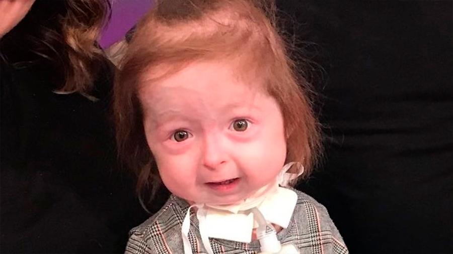 Niña de 2 años con una condición única que acelera su envejecimiento