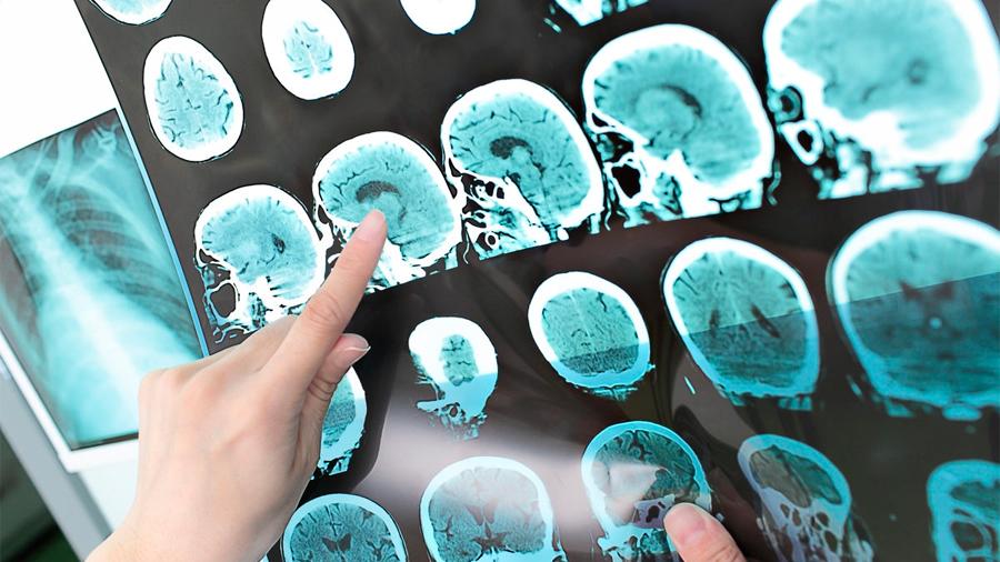 Descubren interruptor molecular que repara el daño neurológico en trastornos como la esclerosis múltiple