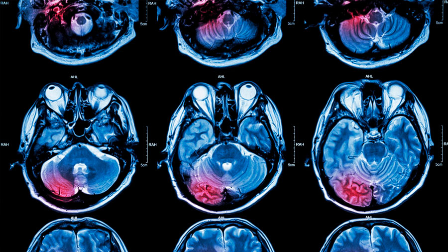 Rompen las barreras cerebrales para atacar tumores