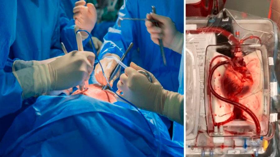 Por primera vez cirujanos regresan a la vida el corazón de un donante muerto