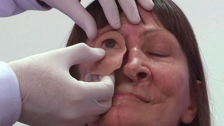 Con fotos y una impresora en 3D reconstruyen rostro de mujer en Brasil