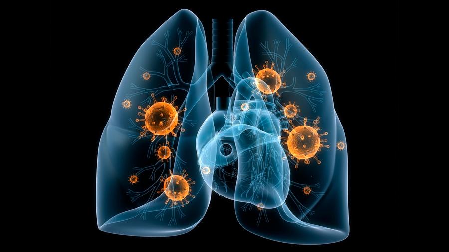 Una tecnología innovadora 'ilumina' las células de cáncer de pulmón y facilita la cirugía del cáncer