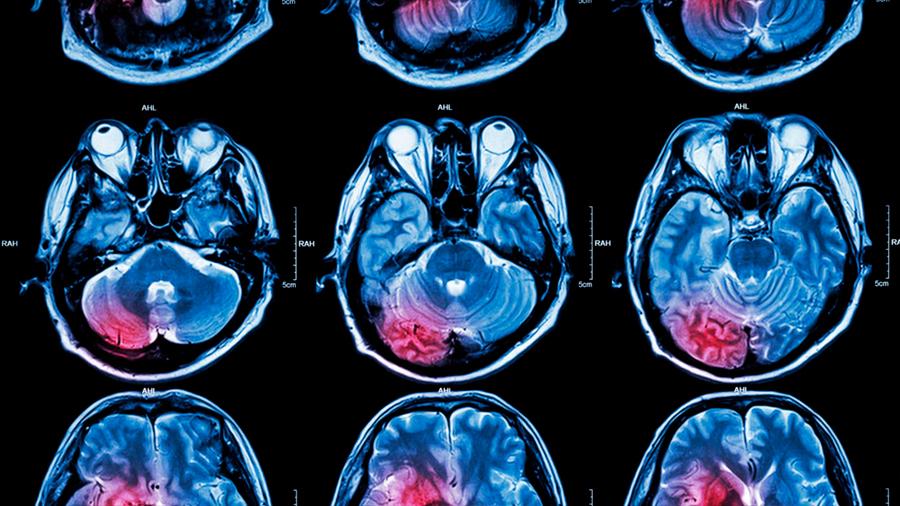 Los tumores cerebrales remodelan las sinapsis neuronales para promover su crecimiento