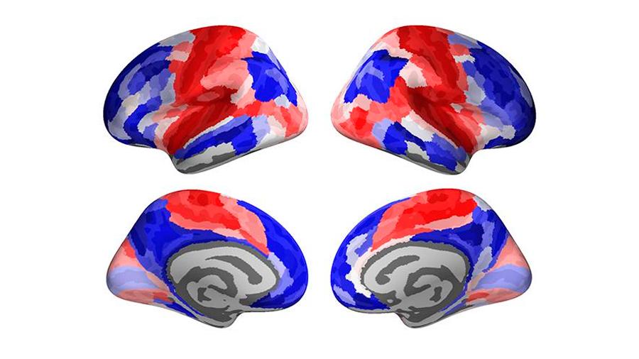 El cerebro se reconfigura durante la adolescencia