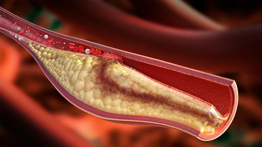 Crean nanopartículas que se comen la placa que obstruye las arterias
