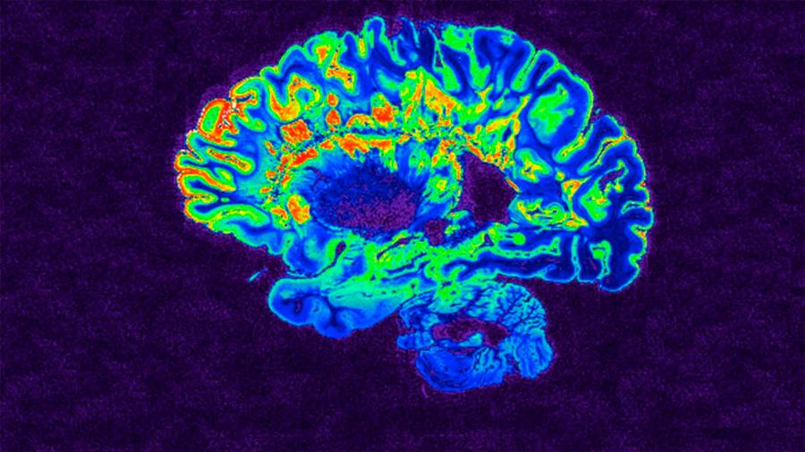 Investigación: monos anestesiados despiertan al instante al estimularles región cerebral vinculada a la conciencia
