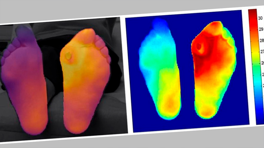 Las complicaciones en los pies del paciente con diabetes a través de la termografía