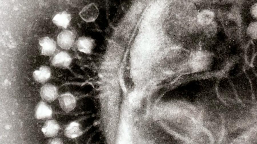 """Científicos encuentran más de 300 virus """"gigantes"""" con extrañas habilidades"""