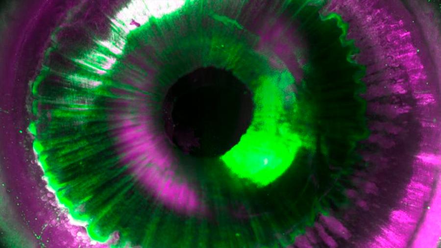 Descubren cómo hacer órganos humanos transparentes