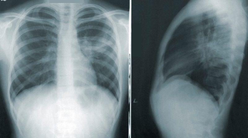 Una nueva IA podría detectar el COVID-19 en una radiografía de tórax