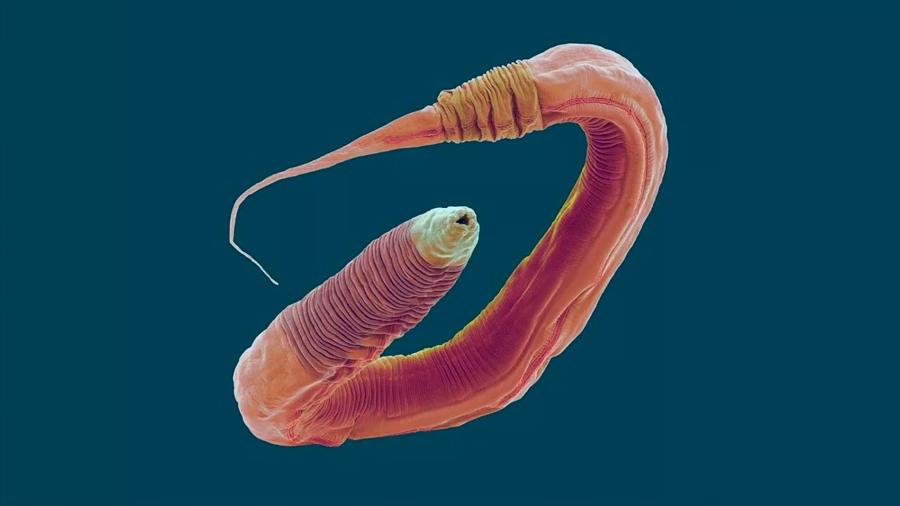 Hallan respuestas nerviosas en gusanos para 'bueno' y para 'malo'
