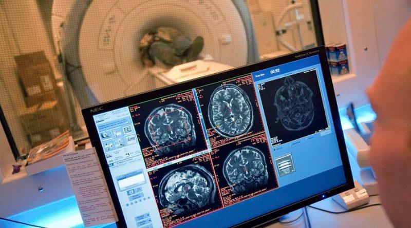 El atlas del cerebro humano: tras una investigación de 15 años, logran descifrar todos sus secretos