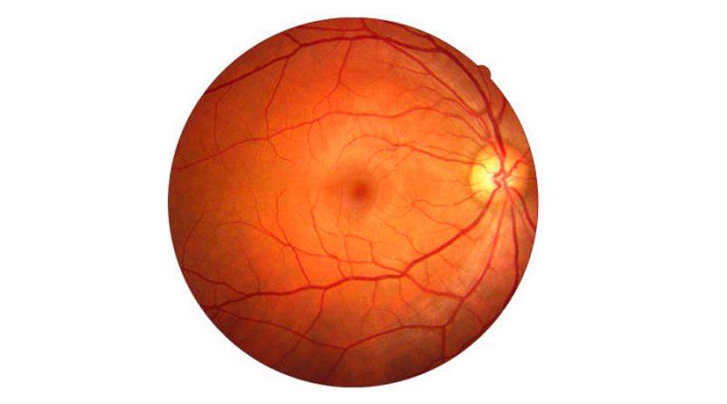 Regeneración de vasos sanguíneos en el ojo mediante células adultas revertidas a un estado casi embrionario