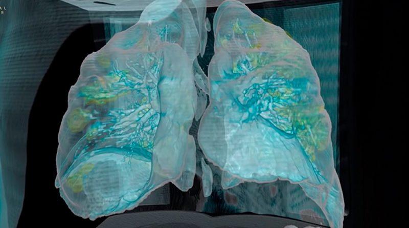 Mira el daño que la Covid-19 le puede ocasionar a tus pulmones
