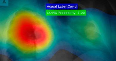 Crean poderoso software que detectar el coronavirus en segundos y con precisión del 98%