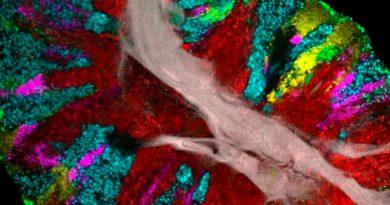"""Esta imagen muestra que tu lengua es una auténtica """"fiesta"""" de bacterias"""