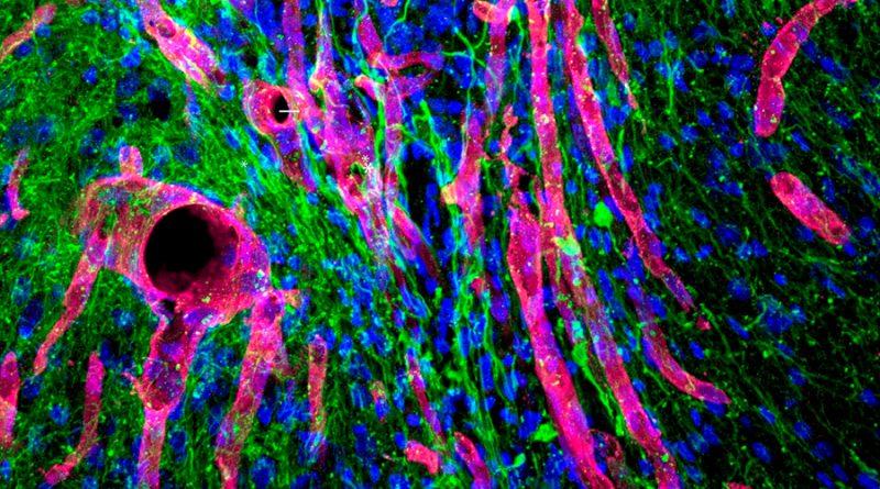 Un gel capaz de reparar el tejido cerebral dañado