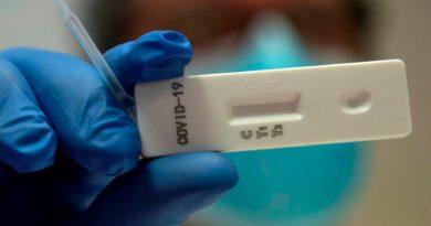 Coronavirus se propagó rápidamente a fines de 2019, revela estudio