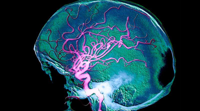 Descubren esencial proteína que controla el desarrollo y las funciones de los vasos sanguíneos del cerebro