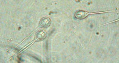 Un parásito es el primer organismo multicelular descubierto que no necesita oxígeno para vivir