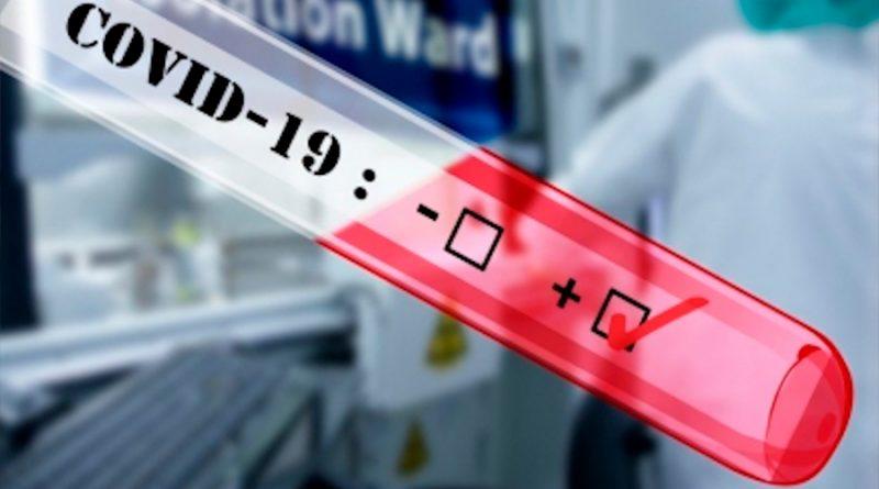 Covid-19: Crean mexicanos método que analizaría muestras de 19 mil 200 personas en lapso de tres a cinco días