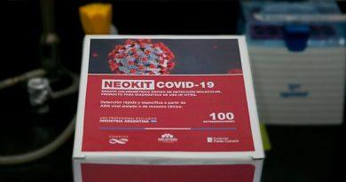 Crean científicos argentinos test molecular que en 75 minutos detecta si una persona se infectó de SARS-CoV-2
