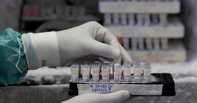 """Investigadores chinos logran un tratamiento que puede detener el covid-19 """"sin vacunas"""""""