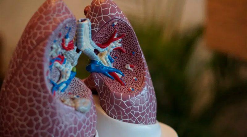 Trasplantan los dos pulmones a italiano de 18 años que contrajo Covid-19