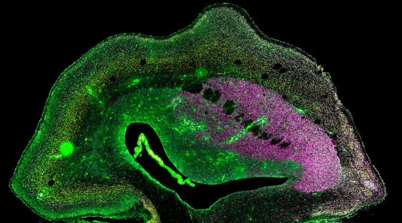 Recrean la evolución cerebral que hizo inteligente al Homo Sapiens