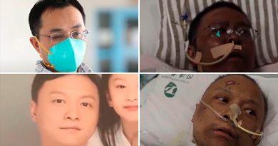 Muere uno de los médicos chinos que despertó del Covid-19 con la piel negra