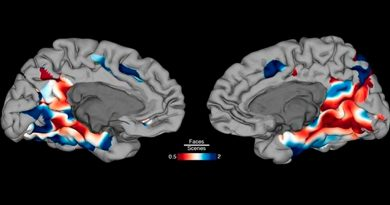Identifican partes del cerebro que trabajan juntas para reconocer personas y cosas