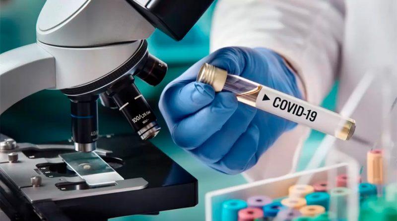 UNAM desarrolla prueba casera para detectar Covid-19 con potencial de producción masiva