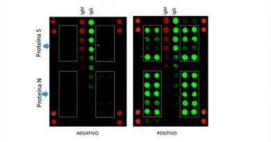 Un nuevo ensayo serológico, inspirado en la astrobiología, detecta la Covid-19