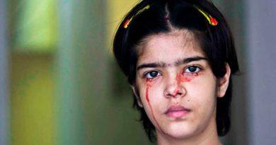 El extraño caso de una niña que sangra por los ojos entra a formar parte de la literatura médica