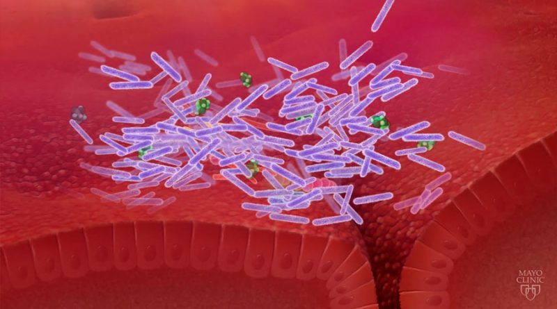 Descubren que una super bacteria secuestra el sistema de curación de heridas y causa enfermedades graves