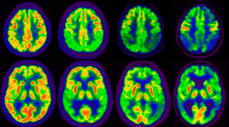 Revierten la pérdida de memoria del Alzheimer con una novedosa terapia génica