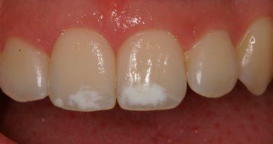 Descubren por qué se daña el esmalte dental