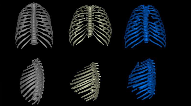 El Homo erectus no era esbelto y ligero, sino compacto, achaparrado y robusto