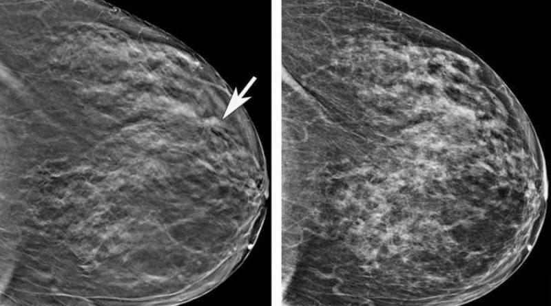 Las células de cáncer de mama convierten a las células inmunes asesinas del cuerpo en aliadas