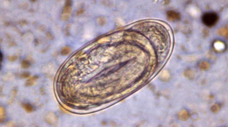 Gusanos parásitos, ¿una opción terapéutica para la esclerosis múltiple?