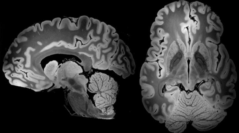 Científicos descubren una regeneración extraordinaria de neuronas