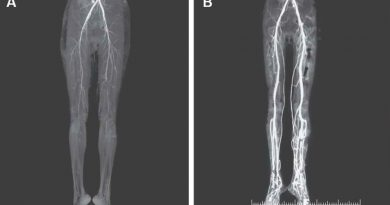 """Diagnostican a mujer que sufre ardor en las piernas la enfermedad medieval del """"fuego del infierno"""""""